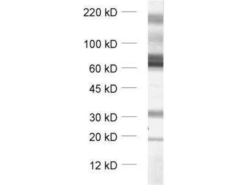 Western Blotting (WB) image for anti-Solute Carrier Family 1 (Glial High Affinity Glutamate Transporter), Member 3 (SLC1A3) (Cytoplasmic Domain) antibody (ABIN2690503)