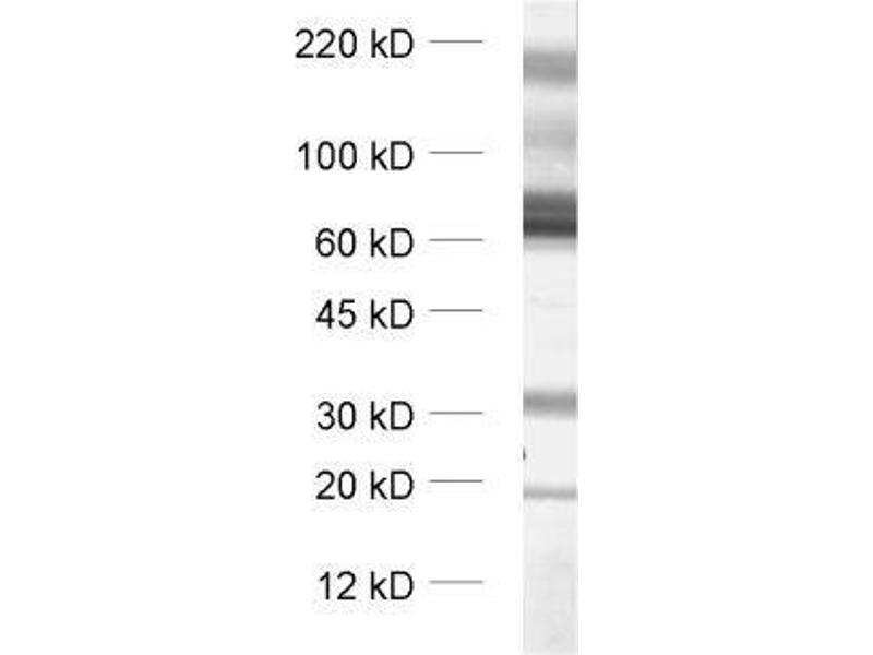 Western Blotting (WB) image for anti-Solute Carrier Family 1 (Glial High Affinity Glutamate Transporter), Member 3 (SLC1A3) (Cytoplasmic Domain) antibody (ABIN2690503)