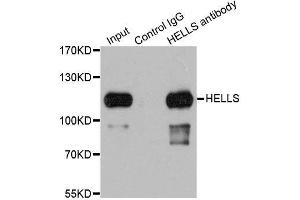 Image no. 3 for anti-Helicase, Lymphoid-Specific (HELLS) antibody (ABIN6141711)