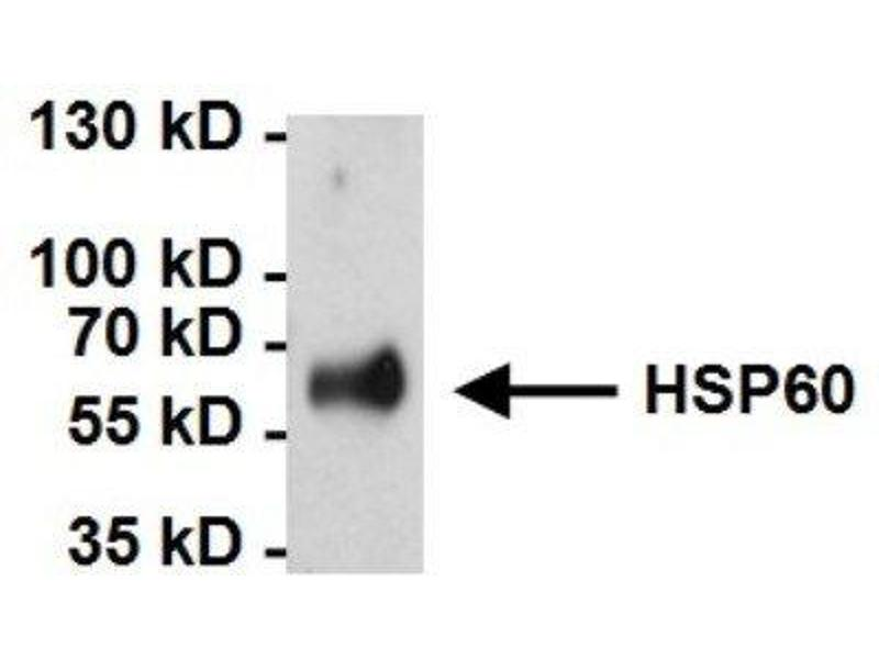 Immunoprecipitation (IP) image for anti-Heat Shock 60kDa Protein 1 (Chaperonin) (HSPD1) antibody (ABIN267325)