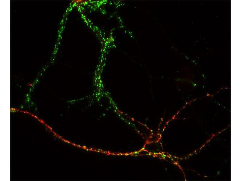 Immunocytochemistry (ICC) image for anti-gamma-aminobutyric Acid (GABA) A Receptor, alpha 1 (GABRA1) (AA 28-43) antibody (ABIN1742455)