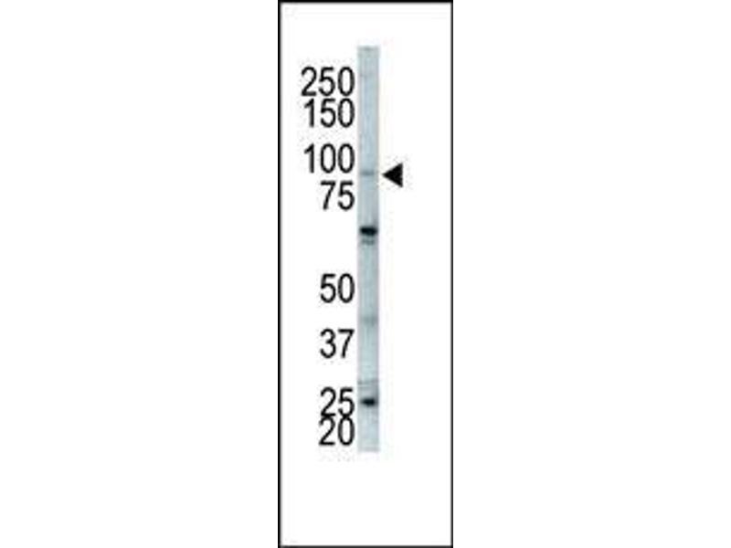 Western Blotting (WB) image for anti-FGFR2 antibody (Fibroblast Growth Factor Receptor 2) (AA 794-821) (ABIN391966)
