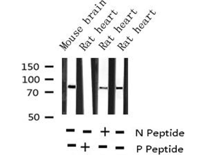 Western Blotting (WB) image for anti-Protein Kinase C, alpha (PKCa) (pThr638) antibody (ABIN6255718)