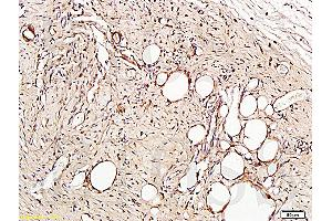Image no. 4 for anti-Platelet/endothelial Cell Adhesion Molecule (PECAM1) (AA 621-650) antibody (ABIN669006)