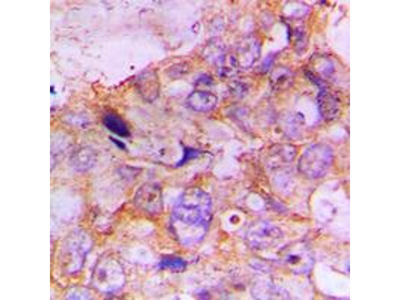 Immunohistochemistry (IHC) image for anti-Caspase 7, Apoptosis-Related Cysteine Peptidase (CASP7) (N-Term) antibody (ABIN2707392)