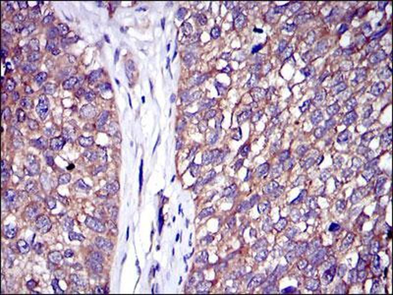Immunohistochemistry (IHC) image for anti-Cas-Br-M (Murine) Ecotropic Retroviral Transforming Sequence (CBL) antibody (ABIN4880224)