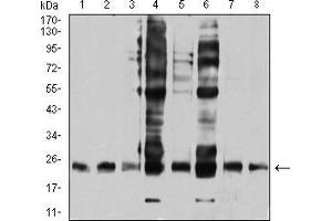 Western Blotting (WB) image for anti-V-Ral Simian Leukemia Viral Oncogene Homolog B (Ras Related, GTP Binding Protein) (Ralb) (AA 89-206) antibody (ABIN4881017)