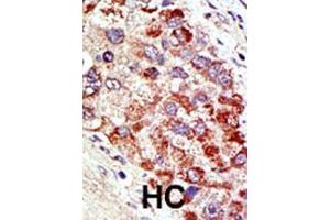Immunohistochemistry (IHC) image for anti-CBL antibody (Cas-Br-M (Murine) Ecotropic Retroviral Transforming Sequence) (AA 1-30) (ABIN388071)