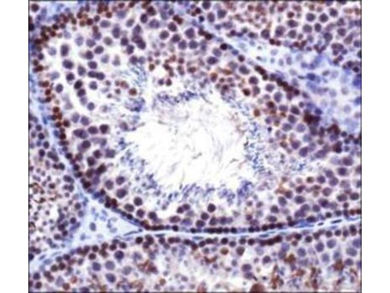 Immunohistochemistry (IHC) image for anti-DNMT3B antibody (DNA (Cytosine-5-)-Methyltransferase 3 beta) (ABIN251114)