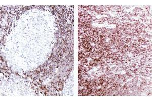Immunohistochemistry (Paraffin-embedded Sections) (IHC (p)) image for anti-BCL2 antibody (B-Cell CLL/lymphoma 2) (AA 41-54) (ABIN967321)