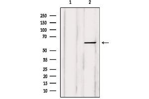 Image no. 4 for anti-Carnitine O-Octanoyltransferase (CROT) antibody (ABIN6260978)