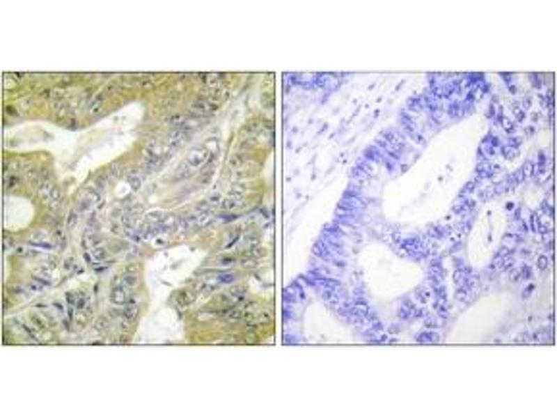 Immunohistochemistry (IHC) image for anti-Hexosaminidase B (Beta Polypeptide) (HEXB) (AA 481-530) antibody (ABIN1533593)