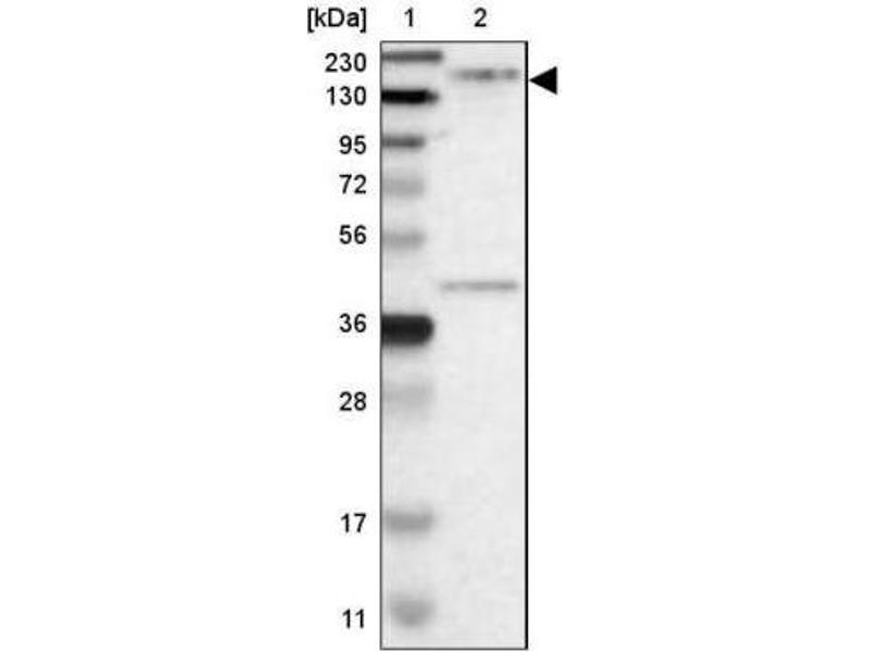 Western Blotting (WB) image for anti-rho-Associated, Coiled-Coil Containing Protein Kinase 2 (ROCK2) antibody (ABIN4350923)