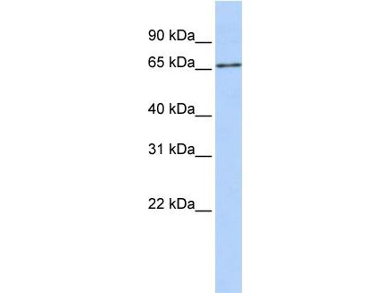 Western Blotting (WB) image for anti-Solute Carrier Family 27 (Fatty Acid Transporter), Member 6 (SLC27A6) (Middle Region) antibody (ABIN405592)