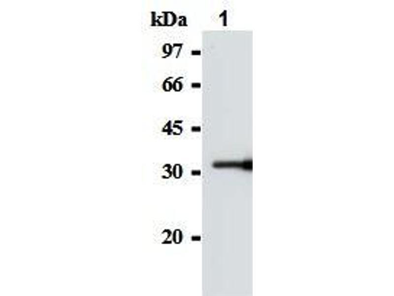 Western Blotting (WB) image for anti-SOCS1 antibody (Suppressor of Cytokine Signaling 1) (AA 2-78) (ABIN1504154)