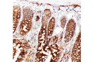 Image no. 3 for anti-Heat Shock 70kDa Protein 8 (HSPA8) (AA 13-31), (N-Term) antibody (ABIN3044300)