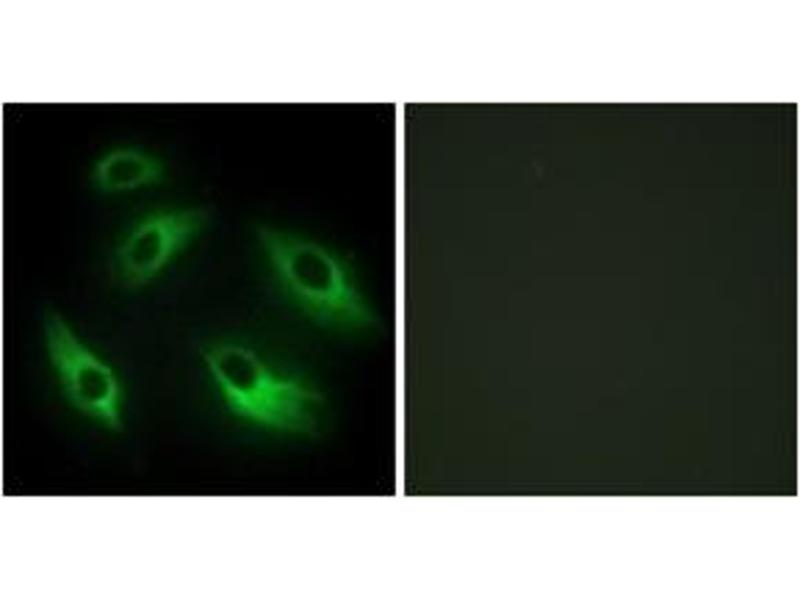 Immunofluorescence (IF) image for anti-EPH Receptor B6 (EPHB6) (AA 861-910) antibody (ABIN1533496)
