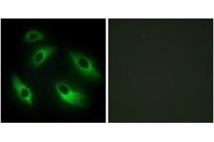 Immunofluorescence (IF) image for anti-EPH Receptor B6 Antikörper (EPHB6) (ABIN1533496)