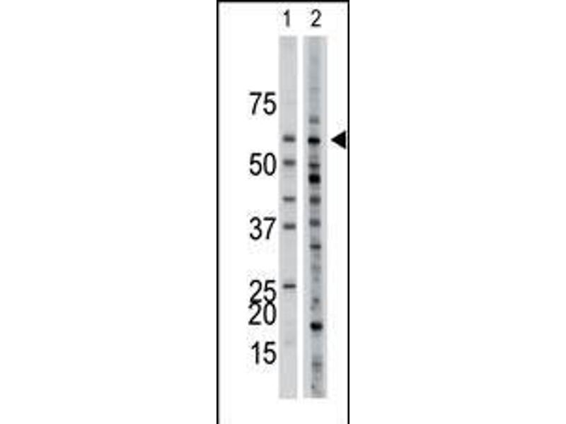 Western Blotting (WB) image for anti-Activin Receptor Type I (ACRV1) (AA 132-162), (Arg147), (Center) antibody (ABIN392240)