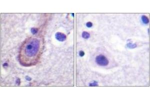 Image no. 1 for anti-Potassium Voltage-Gated Channel, KQT-Like Subfamily, Member 3 (KCNQ3) (AA 191-240), (pThr217) antibody (ABIN1531684)