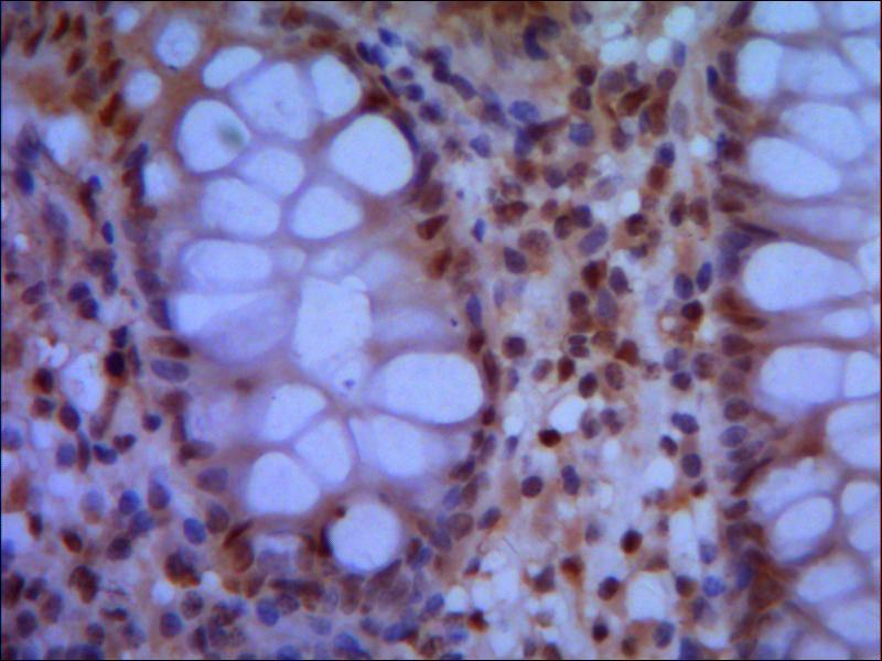 Immunohistochemistry (Paraffin-embedded Sections) (IHC (p)) image for anti-Structural Maintenance of Chromosomes 1A (SMC1A) (N-Term) antibody (ABIN488213)