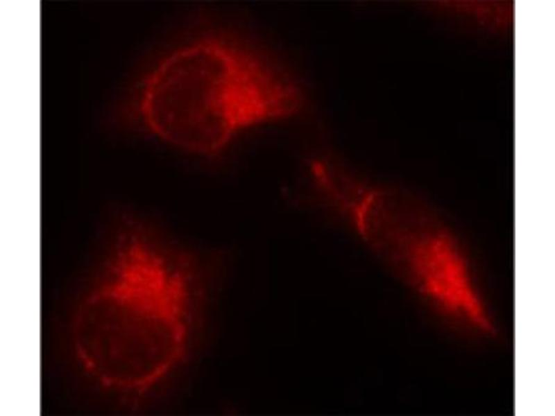 Immunofluorescence (IF) image for anti-MAPT antibody (Microtubule-Associated Protein tau) (pSer356) (ABIN1870395)