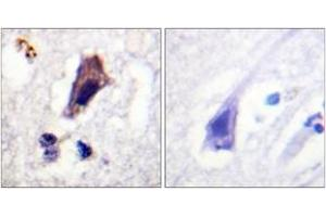 Image no. 1 for anti-phosphoinositide Kinase, FYVE Finger Containing (PIKFYVE) (AA 273-322), (pSer307) antibody (ABIN1531726)