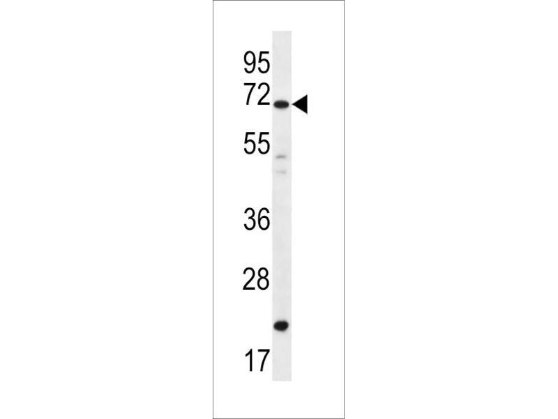 Image no. 1 for anti-Deleted In Azoospermia 4 (DAZ4) (AA 90-119) antibody (ABIN5532902)