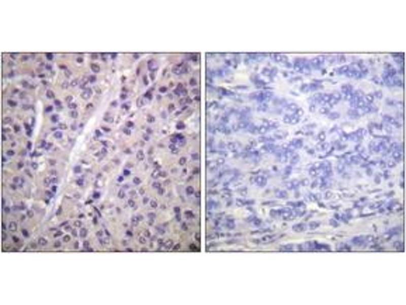 Immunohistochemistry (IHC) image for anti-ARAF antibody (V-Raf Murine Sarcoma 3611 Viral Oncogene Homolog) (pTyr302) (ABIN1531487)