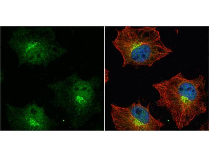 Immunofluorescence (IF) image for anti-Amyloid beta (A4) Precursor Protein (APP) (C-Term) antibody (ABIN2855011)