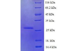 Image no. 1 for S100 Calcium Binding Protein A6 (S100A6) (AA 1-90), (full length) protein (His-SUMO Tag) (ABIN5710298)