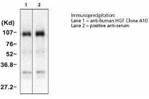 image for anti-Hepatocyte Growth Factor (Hepapoietin A, Scatter Factor) (HGF) antibody (ABIN331456)