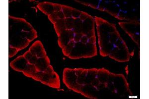 Image no. 2 for anti-Calcium Channel, Voltage-Dependent, L Type, alpha 1F Subunit (CACNA1F) antibody (ABIN1386473)