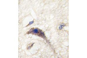 Image no. 2 for anti-Dishevelled Associated Activator of Morphogenesis 1 (DAAM1) (AA 45-74), (N-Term) antibody (ABIN5530989)