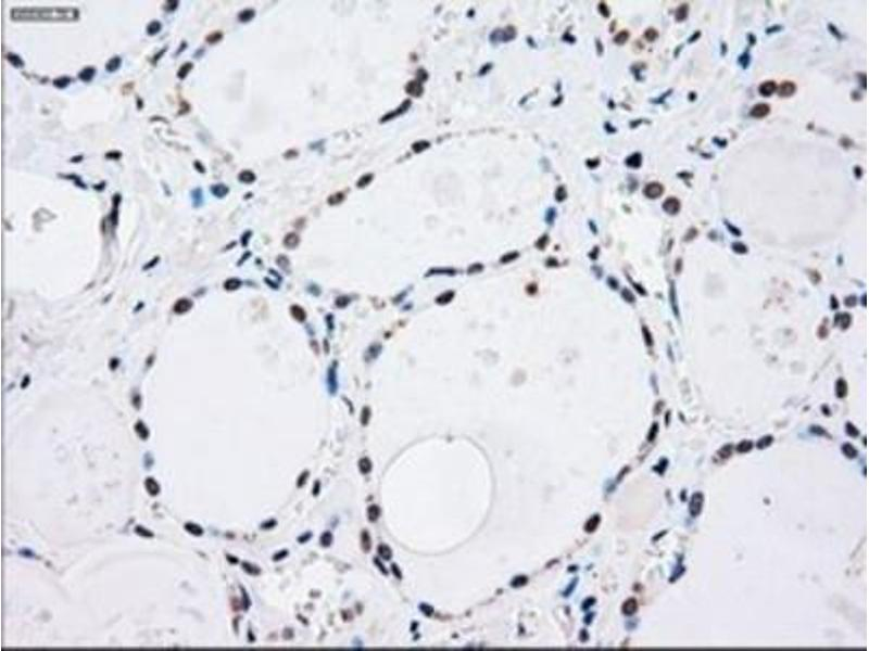 Immunohistochemistry (Paraffin-embedded Sections) (IHC (p)) image for anti-MAP2K4 antibody (Mitogen-Activated Protein Kinase Kinase 4) (ABIN4334806)