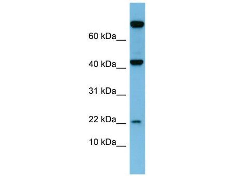 Western Blotting (WB) image for anti-Leptin (LEP) (N-Term) antibody (ABIN2776943)
