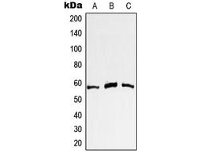 Western Blotting (WB) image for anti-V-Myc Myelocytomatosis Viral Oncogene Homolog (Avian) (MYC) (N-Term) antibody (ABIN2707380)