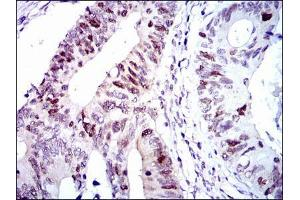Immunohistochemistry (IHC) image for anti-Cyclin-Dependent Kinase 2 (CDK2) antibody (ABIN969506)