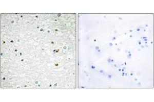 Image no. 1 for anti-Poly (ADP-Ribose) Polymerase Family, Member 3 (PARP3) (AA 10-59) antibody (ABIN1534478)