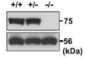 Image no. 5 for anti-Protein Disulfide Isomerase-Like, Testis Expressed (PDILT) (AA 550-563), (AA 571-584), (C-Term) antibody (ABIN2452074)