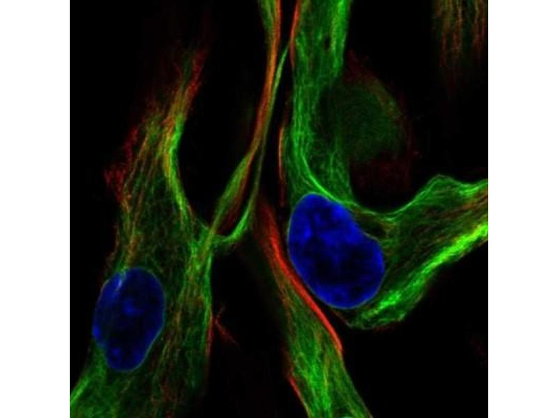 Immunofluorescence (fixed cells) (IF/ICC) image for anti-Vimentin (VIM) antibody (ABIN4365306)