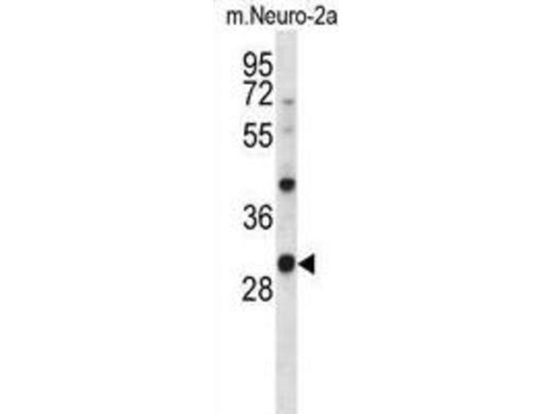 Western Blotting (WB) image for anti-Casein Kinase 1, alpha 1 (CSNK1A1) antibody (ABIN2998237)
