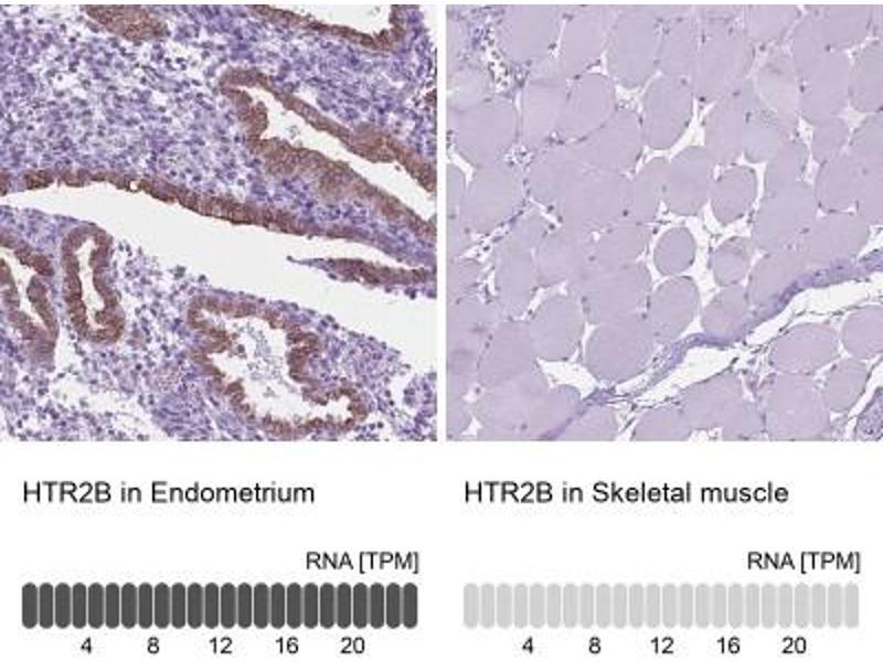Immunohistochemistry (Paraffin-embedded Sections) (IHC (p)) image for anti-Serotonin Receptor 2B (HTR2B) antibody (ABIN4276881)