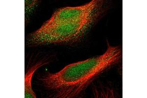 Image no. 2 for anti-Cyclin-Dependent Kinase 14 (CDK14) antibody (ABIN5585564)