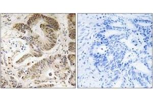 Immunohistochemistry (IHC) image for anti-Phosphoinositide-3-Kinase, Regulatory Subunit 5 (PIK3R5) (AA 695-744) antibody (ABIN1535170)