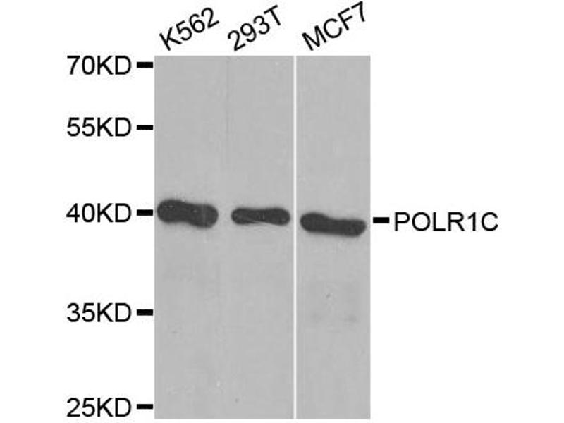 Image no. 1 for anti-Polymerase (RNA) I Polypeptide C, 30kDa (POLR1C) antibody (ABIN6566549)