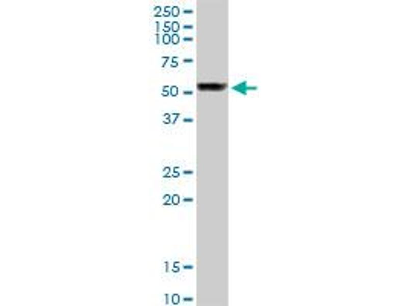 Western Blotting (WB) image for anti-Tubulin, beta 1 (TUBB1) (AA 1-451) antibody (ABIN950104)