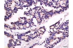 Immunohistochemistry (Paraffin-embedded Sections) (IHC (p)) image for anti-Guanylate Binding Protein 2, Interferon-Inducible (GBP2) (AA 185-225) antibody (ABIN1385697)