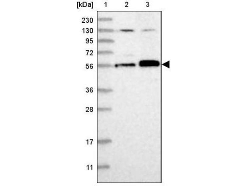 Western Blotting (WB) image for anti-Family with Sequence Similarity 175, Member A (FAM175A) antibody (ABIN4277467)
