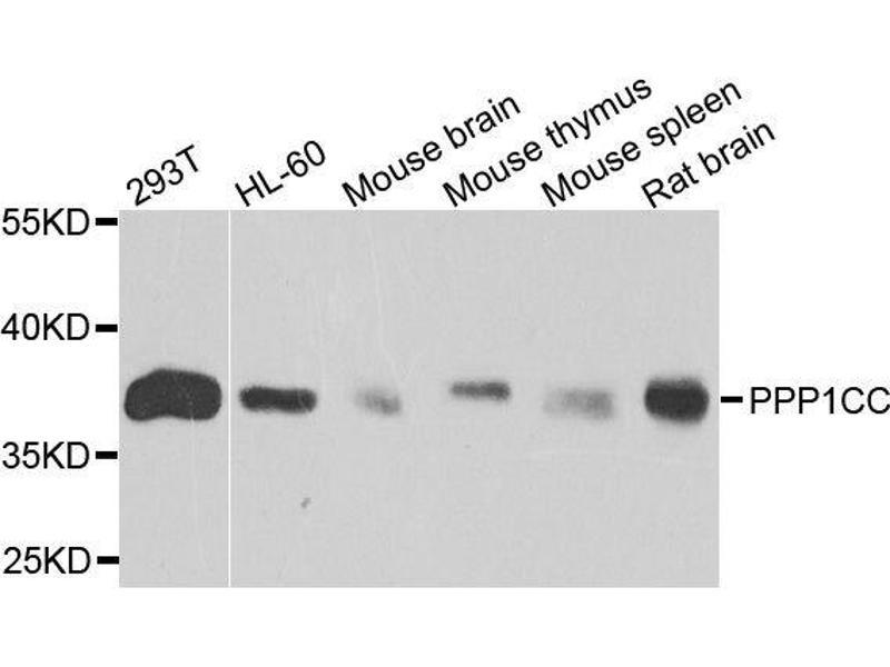 Image no. 1 for anti-Protein Phosphatase 1, Catalytic Subunit, gamma Isoform (PPP1CC) antibody (ABIN1682257)